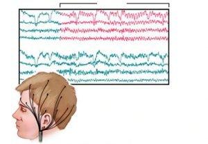 electroencefalograma en saltillo